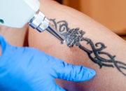 刺青除去の種類と方法まとめ!