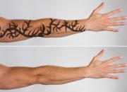 美白成分で刺青除去する海外製クリームの効果と副作用