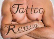 広範囲の刺青除去のやり方