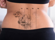 レーザーの刺青除去のメリットとデメリット