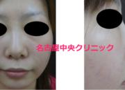 鼻の症例写真 プロテーゼ入れ替え