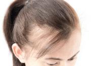 【医師が教える】女性の薄毛が起こるメカニズムと薄毛の原因になる生活習慣や病気について
