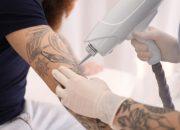 【医師が教える】無許可販売の刺青除去用レーザー機器はリスキー!セルフケアよりクリニックで治療しよう